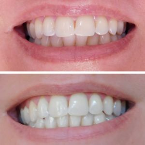Easy Teeth Whitening at Home – Even for Sensitive Teeth | Bottom Left of the Mitten